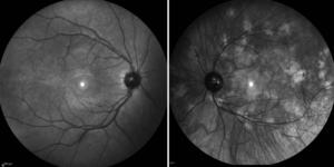 FIG.1. Foto del fundus in modalità infrarosso: nell'immagine sinistra è visibile un fundus oculare privo di chiazze coroideali NF1 correlate; al contrario, nell'immagine destra è apprezzabile la presenza di multiple chiazze coroideali NF1 correlate.