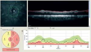 FIG.2. Valutazione dello spessore delle fibre nervose retiniche mediante OCT: il colore rosso in alcuni settori del cerchio situato nella parte inferiore sinistra dell'immagine indica che nel paziente in esame lo spessore delle fibre nervose retiniche è al di sotto dei limiti di norma in alcune aree.
