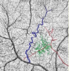 FIG.3. Immagine ottenuta mediante OCT-angiografia in cui è visibile la presenza di una alterazione vascolare retinica NF1 correlata. Il vaso venoso (con aspetto a cavaturacciolo) è colorato in blu, il vaso arterioso in rosso e il plesso capillare anomalo in verde.